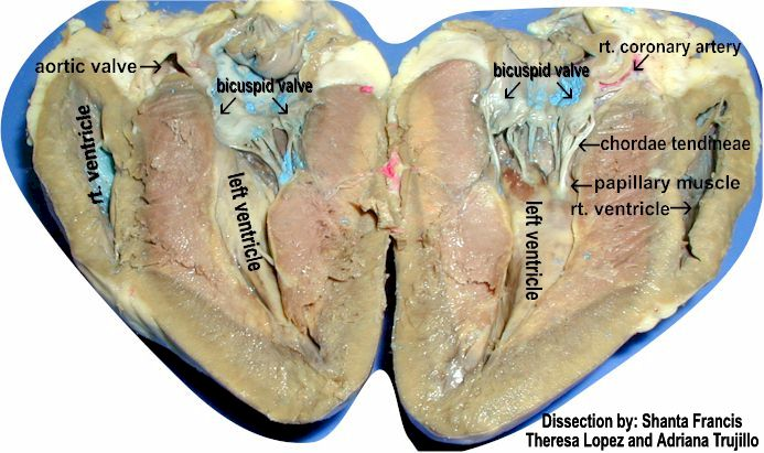 Left ventricle dissection